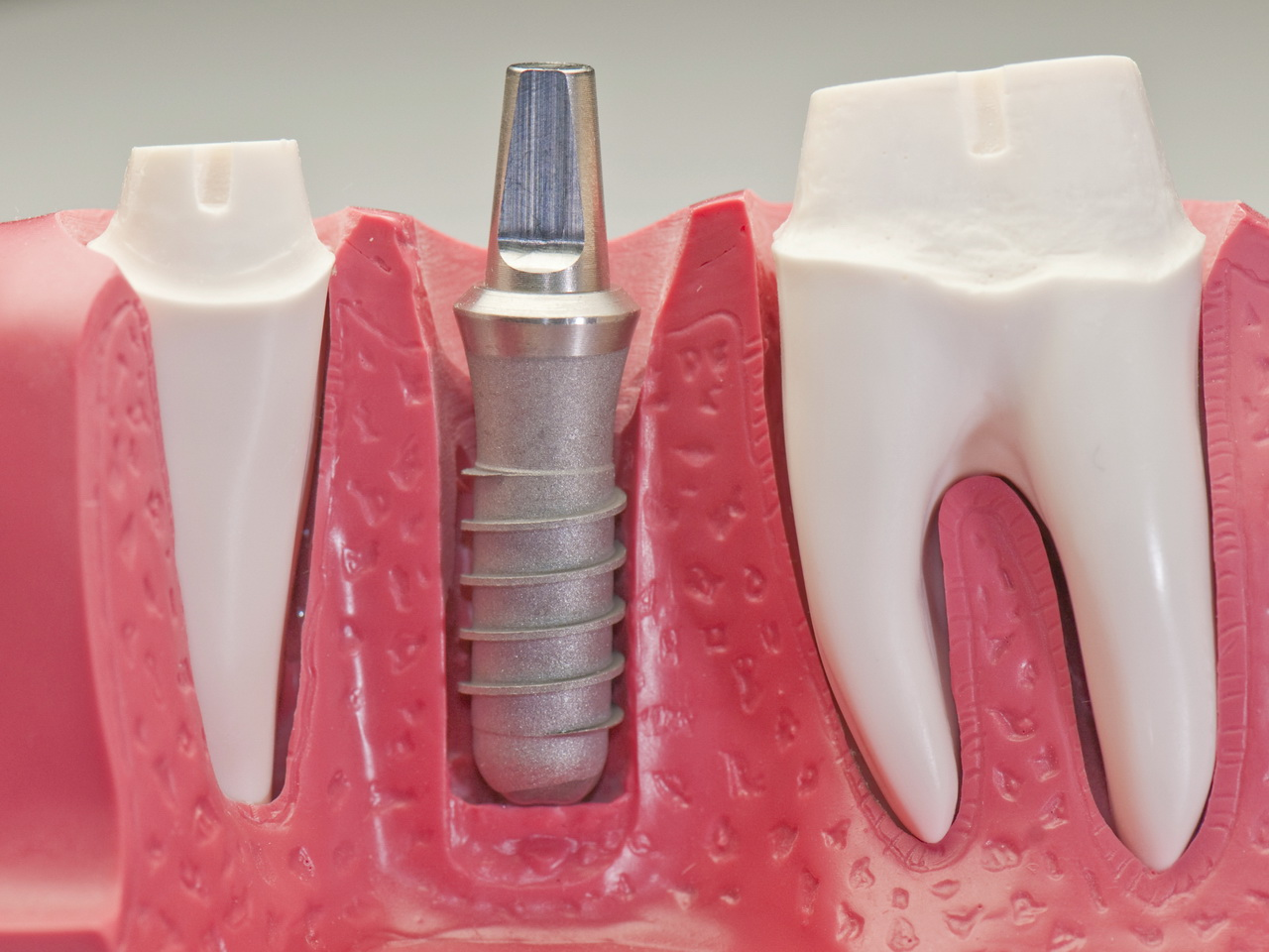 dental implants The american dental association (ada) is the nation's largest dental association and is the leading source of oral health related information for dentists and their patients.